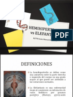 Hemihipertrofia vs Elefantiasis
