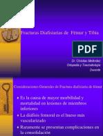 Fracturas Diafisiarias de Femur y Tibia