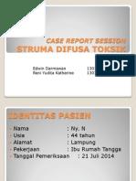 CRS Struma Difusa Toksik