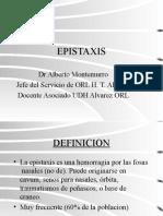 Epistaxis Manejo