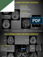 Malformaciones arterio-venosas