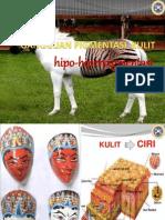 Albino Vitiligo Melasma