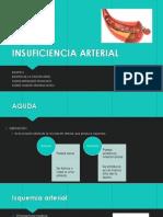 Insuficiencia Arterial