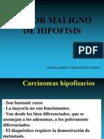 Tumores Malignos de Hipofisis