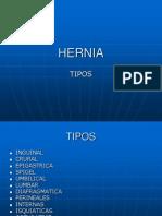 clase-hernia-inguinal-06-1225245957692663-9