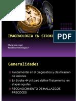 Imagenologia en Acv- Dra. Maria Jose Angel 2014