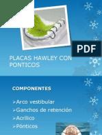 Placa Hawley Con Ponticos