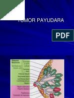 1 Tumor Payudara