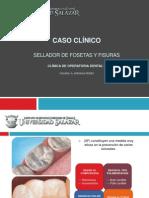 Sellador Caso Clinico
