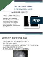 Artritis Tuberculosa