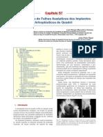 Mecanismos de Falhas Assépticas Dos Implantes Artroplásticos de Quadril_MARCELINO