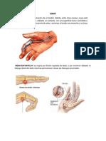 Patologias Software