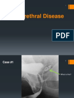 Adult Urethral Disease (Aug 2014)