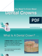 dentalcrownsfinal-120709183635-phpapp01