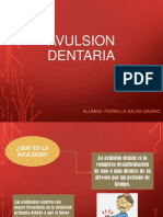 Avulsion Dentaria (2)