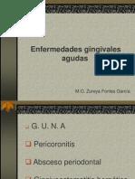 enfermedades gingivales agudas