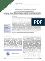Periodontio Integrated Implants  ( Ligaplant )