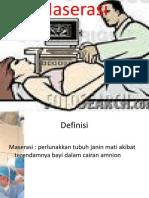 Macerasi Fetus