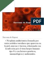 Sarcoma de Kaposi Oral