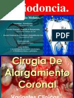 cirugiadealargamientocoronalpreprotesica-140325222228-phpapp01