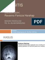 Radiologi Sinus Paranasal