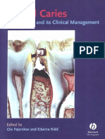 Dental Caries - The Disease and Its Clinical Management - Fajerskov (1)