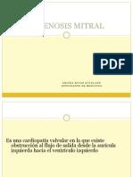 Estenosis Mitral.pptx