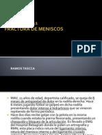 FRACTURAmeniscos.pptx