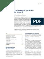 Esofagectomia por lesion benigna.pdf