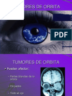 Tumores de Orbita