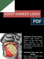 kanker-lidah