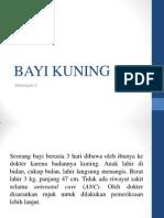 BAYI KUNING.pptx