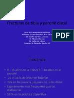 FracturasdeTibiayPeroneDistal