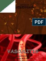 55354501 Vasculitis