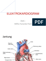 EKG GRAFI