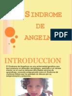 Sindrome de Angelman