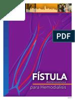 Fistula Arteriovenosa Av Hemodialisis