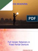 Full Veneer Retainers in Fpd