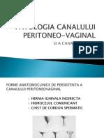 Patologia Canal Peritoneovaginal