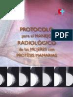 Protocolo Manejo Radiologico Protesis Mamarias
