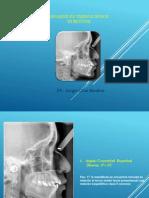 Analisis Esqueletico de Burstone Dr Sergio Cruz