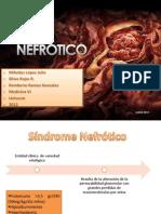 SX Nefrótico