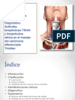 carcinomadetiroides-130214142639-phpapp01