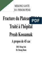 33-Fracture Du Plateau Tibial