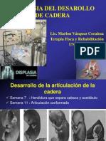 1. Displasia Del Desarrollo de Cadera
