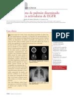 24.11 Adenocarcinoma de pulmón diseminado con mutaciones activadoras de EGFR.pdf