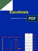 7- Escoliosis