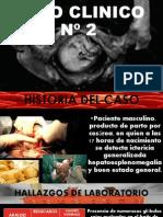 Caso Clinico 2 Abril