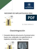 Nociones de Implantologia Oral (2)