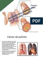 Emfermedades Oncologicas Del Sistema Respiratorio